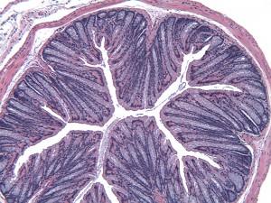 MAUC Normal Distal Colon